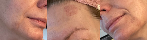Kopping av ansiktet